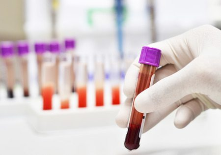 Sacramento DUI Lawyer Blood Sample Defense